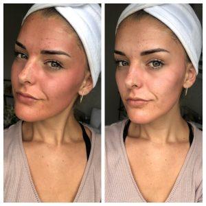 Microneedling behandeling acne littekens